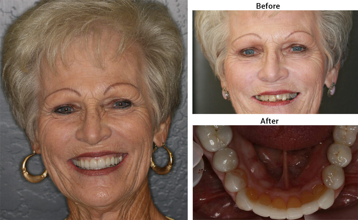 Denture Before After 01