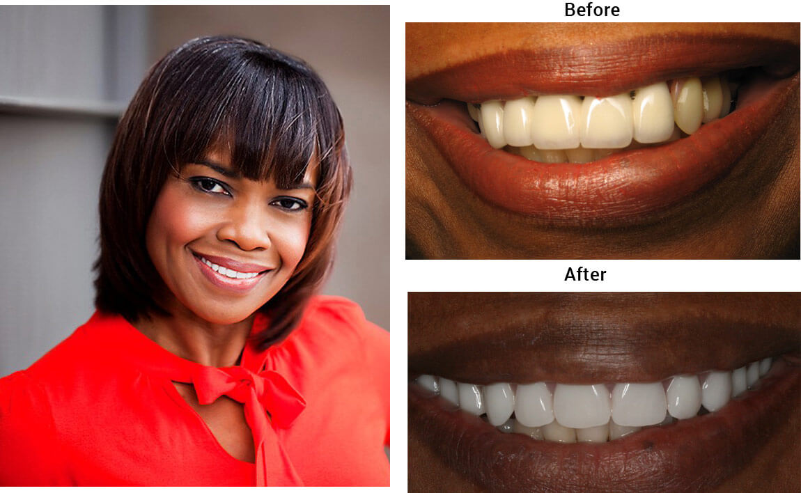Hybrid Denture Before After 02