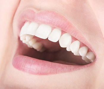 What you need to know about teeth whitening treatment in Phoenix, AZ