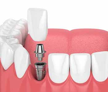 The staff of Life Smiles Dental Care often urge patients to consider dental implants.