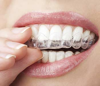 Adult orthodontics are available for patients in Phoenix, AZ and include ClearCorrect and Six Month Smiles