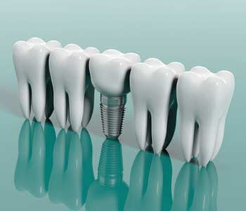 How Dental Implants Can Improve your Appearance in Phoenix area