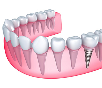 Hybrid Dental Implants in Phoenix AZ area