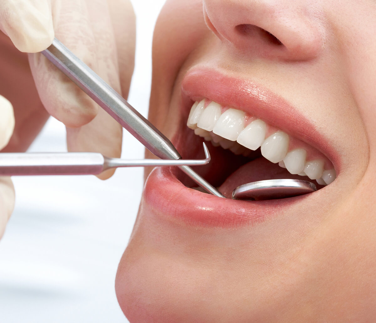 Straighten Your Smile with Veneers for Crooked Teeth in Phoenix, AZ Area